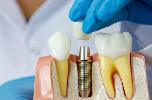 השתלות שיניים מה חשוב לדעת?